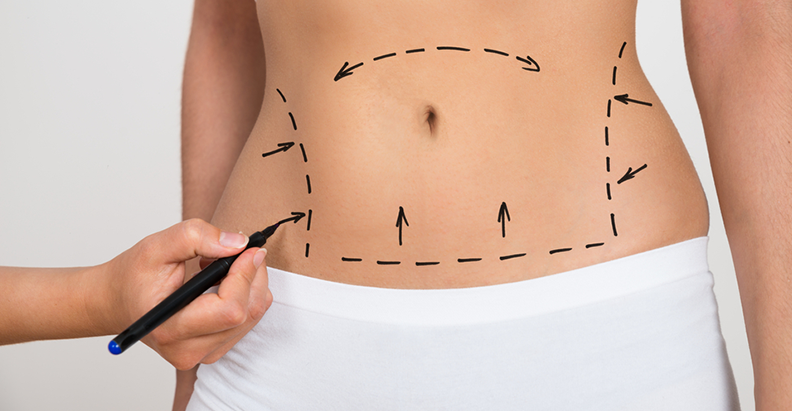 Tummy Tuck' Complications—Study Looks at Rates and Risk