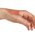 Better outcomes using cultured, self-donated, epidermal cells for serious burn victims
