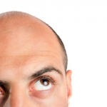Popular Hair Transplant Procedures