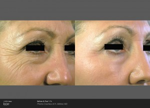 Skin Rejuvenation treatment : Before and After