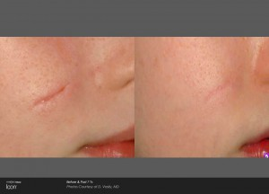 Surgical scar - before and after