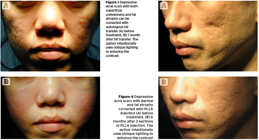 Management of Post-acne Scarring   PRIME Journal