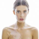 CU researchers identify genes related to vitiligo