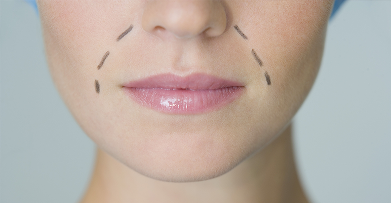 How to achieve optimal perioral correction | PRIME Journal