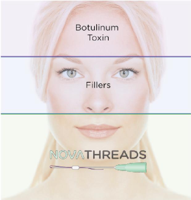 Introducing NovaThreads® dissolvable threads for skin