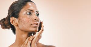 Facial hyperpigmentation in skin of colour