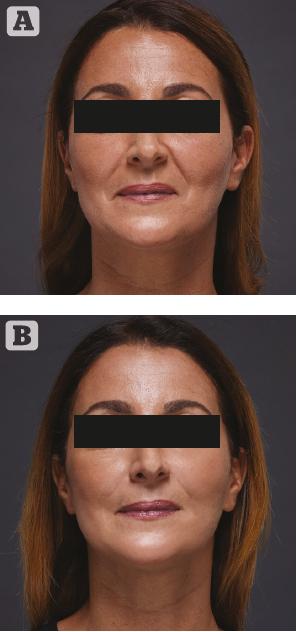 Hyaluronic Acid Filler and Improved Self-Esteem | PRIME Journal