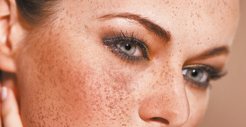 Treating Melasma Effectively Using a Controlled, Individual