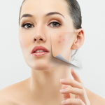 Sebacia EU Real-World Results Demonstrate 85% Durable Improvement in Acne at 12 Months