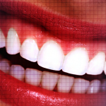 Plasma Exeresis – A Novel Approach to Treat Gummy Smile