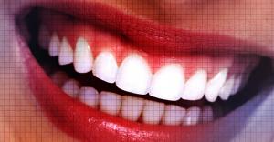 Plasma Exeresis – A Novel Approach to Treat Gummy Smile