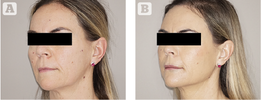 Large volume fat grafting for facial and periorbital