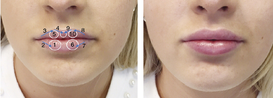 The non-surgical lip lift with tubercle shifts | PRIME Journal